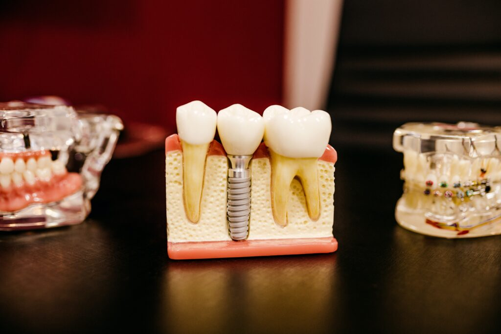 Grohe Single Family Office Invests in Dental Technology Company Zircon Medical